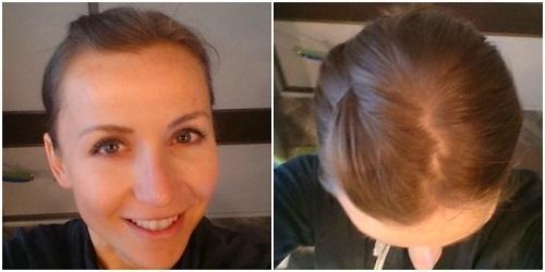 zdjęcie włosów w 9 dniu eksperymentu z jajami