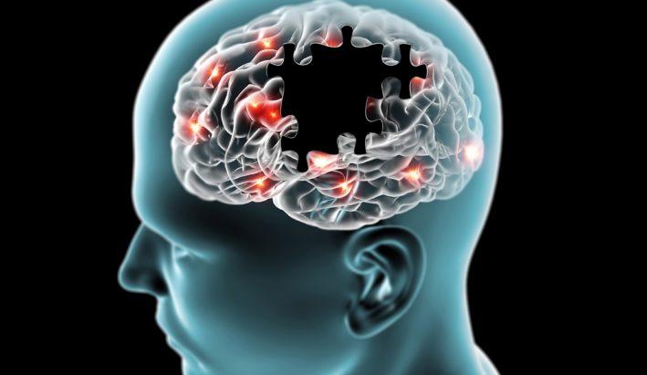 neurodegeneracja mózgu