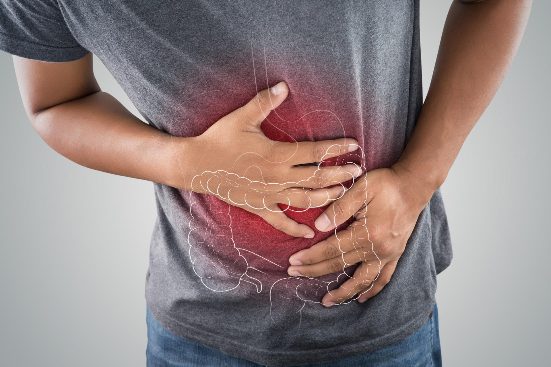 Zespół jelita drażliwego, IBS